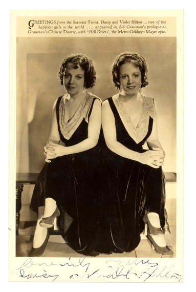 Image result for Daisy and Violet Hilton